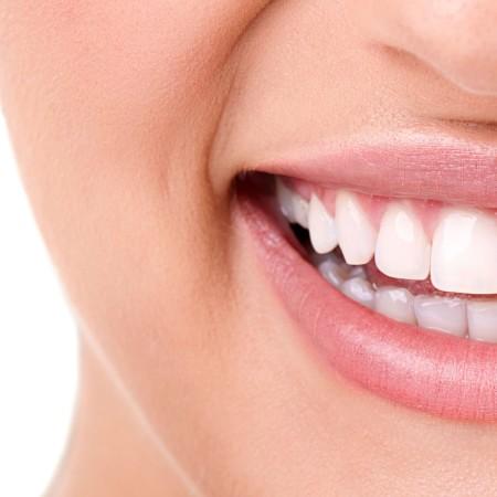 Straight Teeth